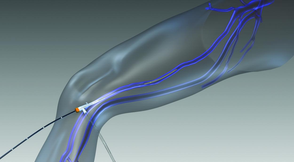 Insertion du cathéter - Accès à la veine